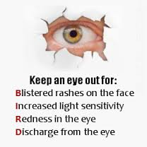 shingles in eye