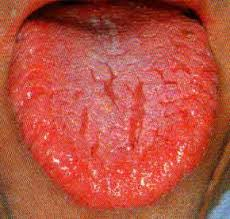 red cracked tongue